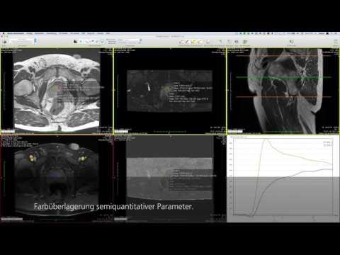 Dynamische Auswertung am Beispiel Prostata MRT