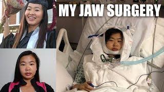 MY JAW SURGERY EXPERIENCE | LeFort I Osteotomy Day 1-35 of Recovery & Tips (VLOG 11) | katyyho
