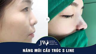 Sau nâng mũi cấu trúc S Line thay đổi như thế nào?