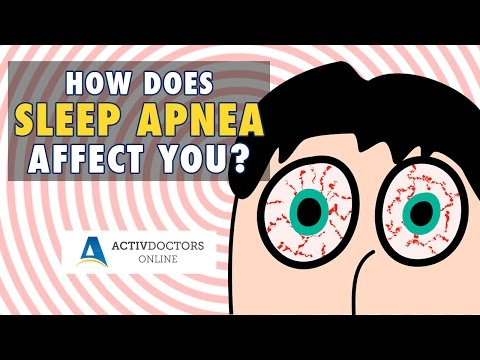 What is Sleep Apnea? April 2017 Webinar