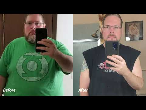 Aaron King - CHI Health Bariatric Surgery Patient