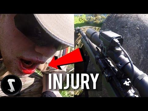 500 FPS Rifle Draws Blood (Airsoft INJURY)