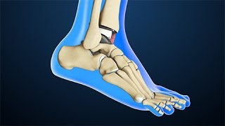 Total Ankle Replacement Surgery | Nucleus Health