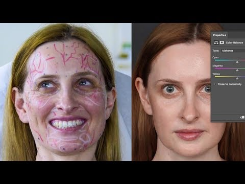 Cosmetic Surgeon Vs Photoshop Battle. Find out who wins...