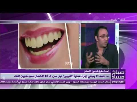أحدث طرق تجميل الأسنان مع د. أحمد عصمت | صباح مساء