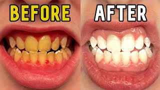 How I Whitened My Teeth in 14 Days!