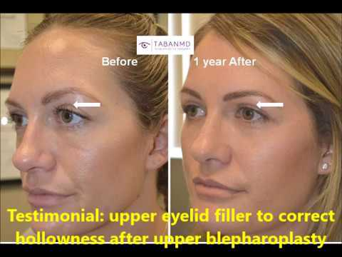 Upper Eyelid Filler injection to correct hollowness after upper blepharoplasty