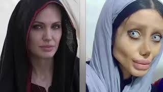 Sahar Tabar's 50 Surgeries To Look Like Angelina Jolie Didn't Really Work - NEWS TODAY
