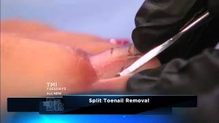 How to Remove a Split Toenail -- The Doctors