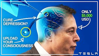 How Neuralink Will Change Humanity..
