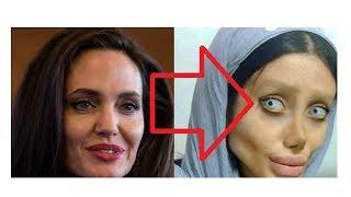 Nieuws: Angelina Jolie-'lookalike' ondergaat vijftig (!) operaties