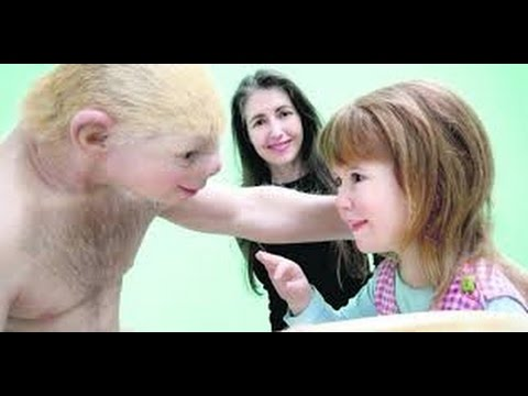 Patricia Piccinini * Relativity * Art Exhibition.* Galway * July 13-26, 2015