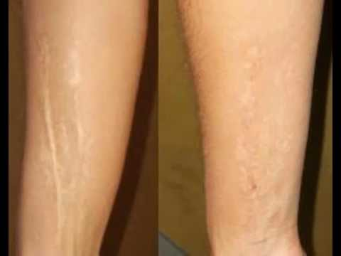 How To Get Rid Of Dark Scars On Legs Youtube