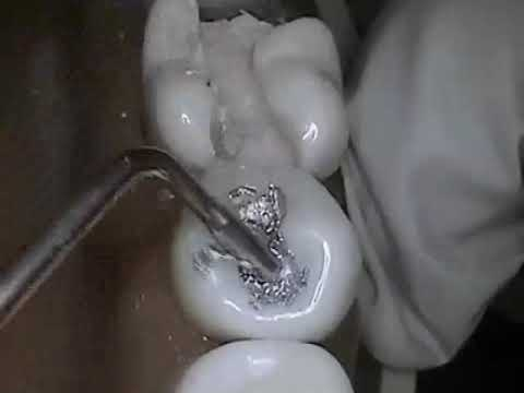 Dental filling by Dentist at Peoples Dental Clinic