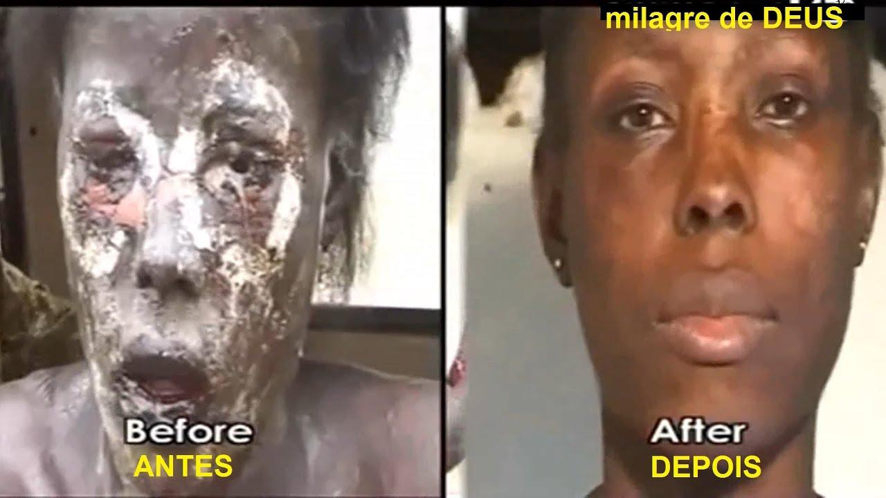 Milagres De Deus Na África