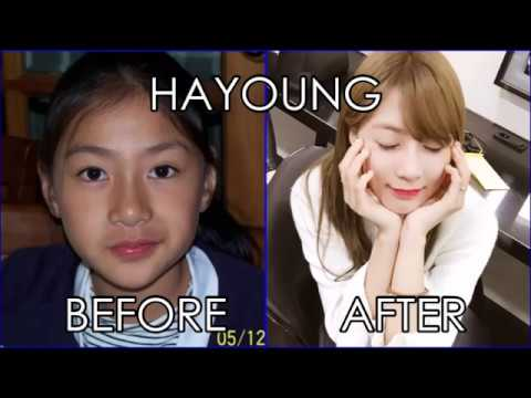 Apink - Before and After