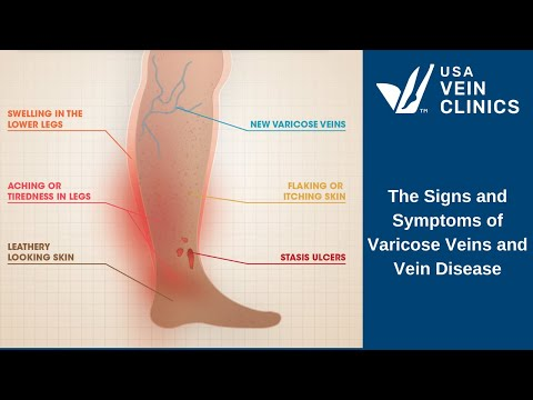 Signs and Symptoms of Vein Disease and Varicose Veins