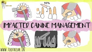 MANAGEMENT OF IMPACTED CANINES   FIVE TREATMENT OPTIONS