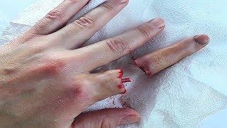 снять отек с пальца после пореза изготовлено материала