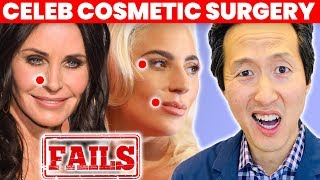 Doctor Reacts to Celebrity Plastic Surgery Fails - Dr. Anthony Youn