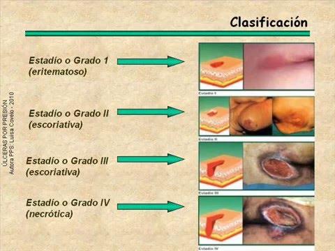Hipertensión diastolica