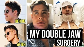 I HAD JAW SURGERY | MY DOUBLE JAW SURGERY EXPERIENCE *BEFORE & AFTER PHOTOS*