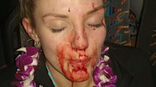 Woman injured from breadfruit thrown into tour bus window in Windward Oahu