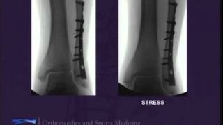 Clearing Up Controversies in Ankle Fracture Management