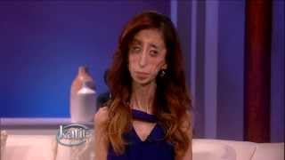 """Woman Called """"World's Ugliest Woman"""" Becomes Inspiration to All"""