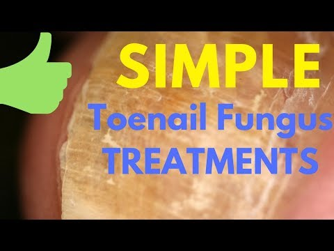 Simple Natural Steps to Treat Toenail Fungus from Home