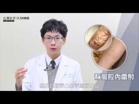 靜脈曲張微創手術_ 陳建名醫師【光澤診所】
