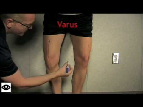 Knee Examination Part 1