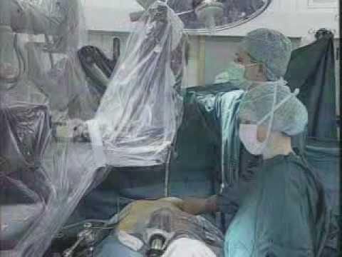 da Vinci Robotic Hysterectomy from Univ of Michigan