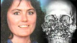 Woman Has Near-Total Face Transplant