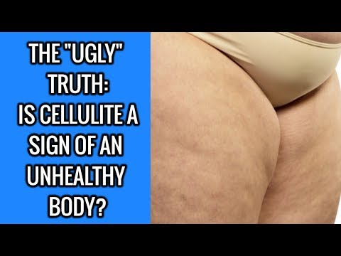 The Untold Truth About Cellulite: 4 Causes And 4 Treatments