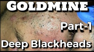 Goldmine of Big Deep Blackheads Part-1