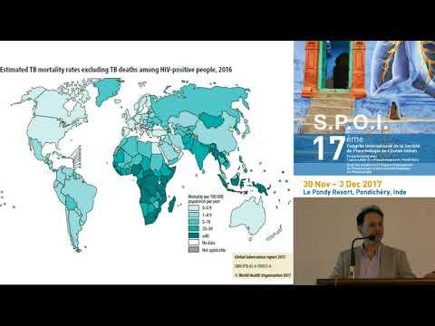 Tuberculose en Afrique du sud Pr U Lalloo Durban, Afrique du Sud