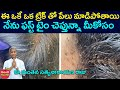 Hair Clinic Remove Hundreds Of Lice From Client's Head | తలలో పేలు | Dr Manthena Satyanarayana Raju