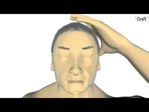 2014 video animation showing how the basic features of the Dr.UGraft system work to successfully extract different types of hair from the body and head.