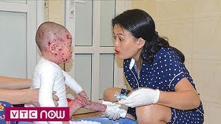 Cảm động người mẹ của những đứa trẻ mắc bệnh hiếm