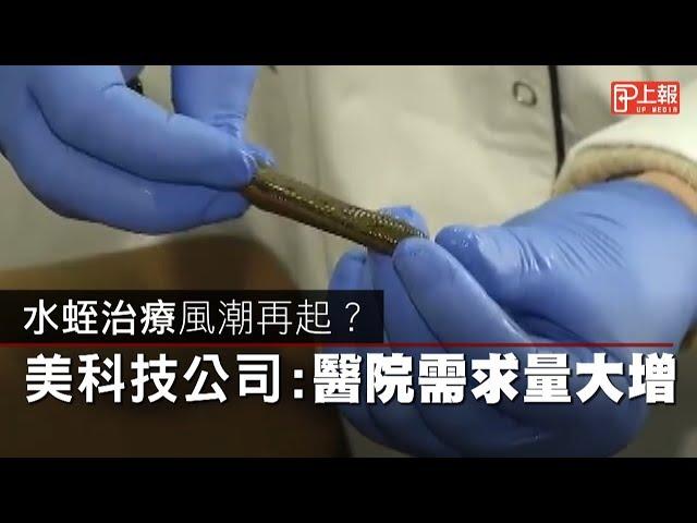 【慎入片】水蛭治療風潮再起? 美科技公司:醫院需求量大增