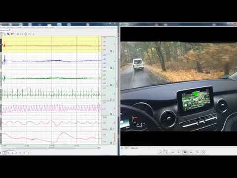 Eye Tracking & Physiology - Synchronized Data