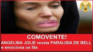 COMOVENTE! ANGELINA JOLIE revela PARALISIA DE BELL e emociona os fãs