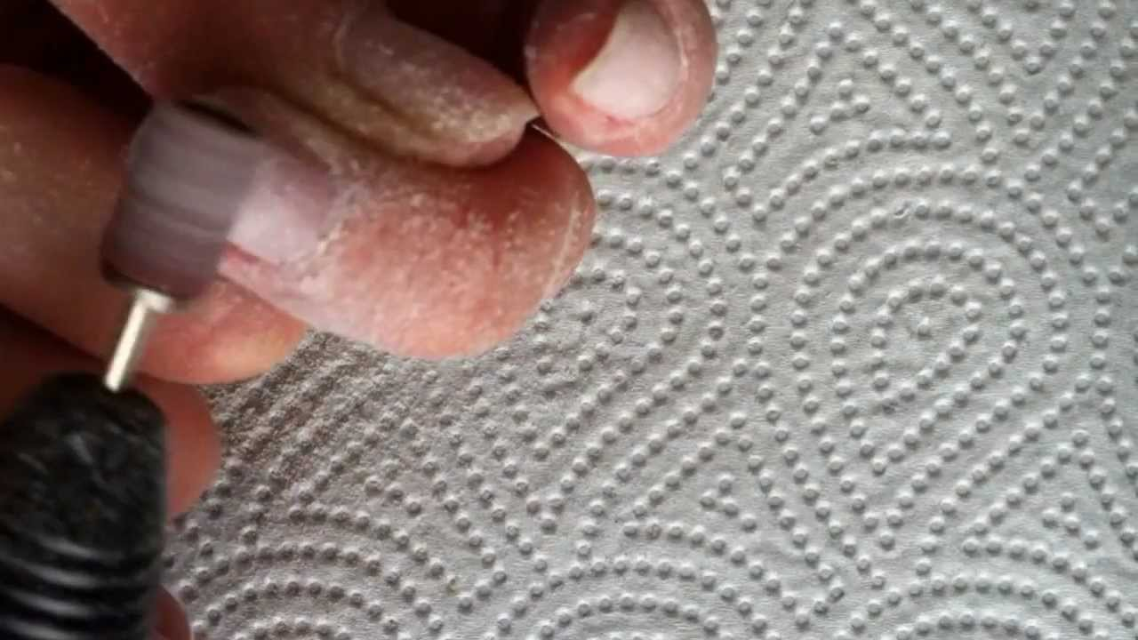 gel refill abfeilen mit nagelfr ser nagelvorbereitung 7. Black Bedroom Furniture Sets. Home Design Ideas