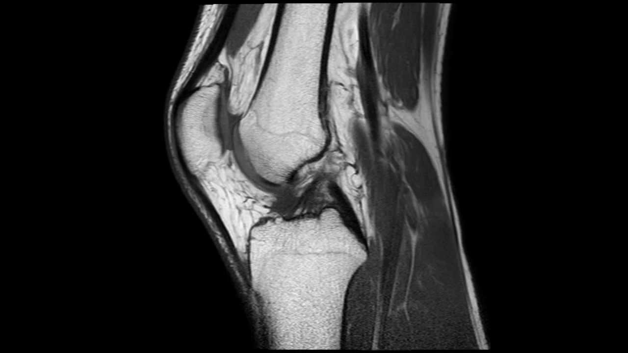 mri for knee what to expect