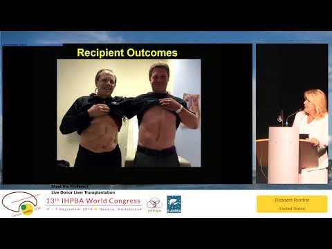MTP03.2 - Live Donor Liver Transplantation