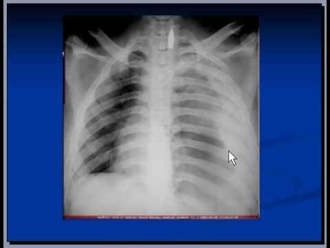 Chest x-ray interpretation, hemothorax