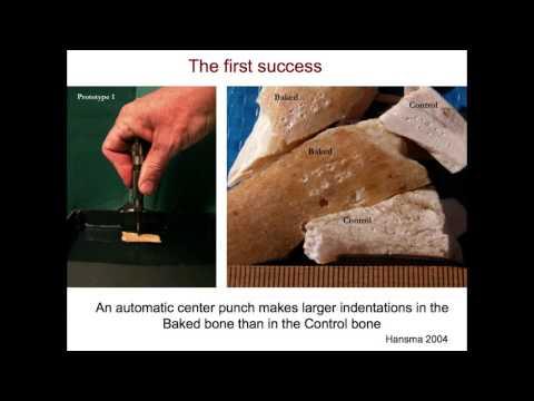 Bone Fracture Resistance
