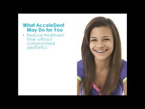 AcceleDent- The Fast Track to Straight Teeth!