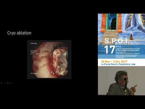 Endoscopie Interventionnelle en Inde Dr Narasiman, Apollo Hospitals Chennai, Inde